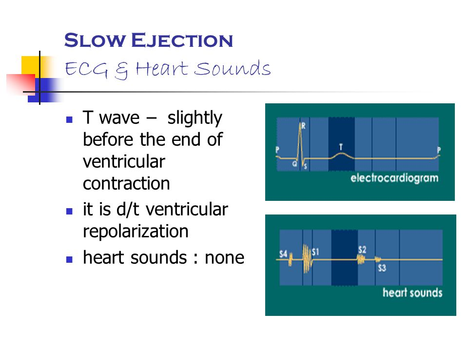Slow Ejection ECG & Heart Sounds
