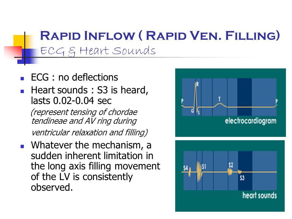 Rapid Inflow ( Rapid Ven. Filling) ECG & Heart Sounds