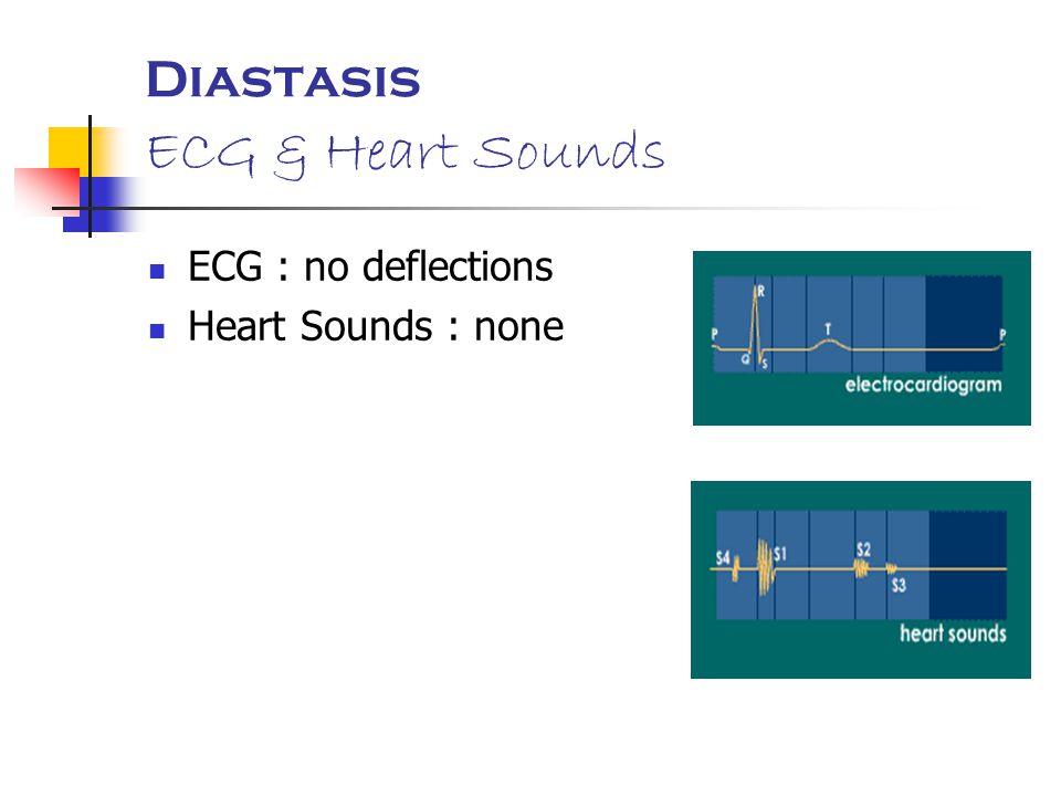 Diastasis ECG & Heart Sounds