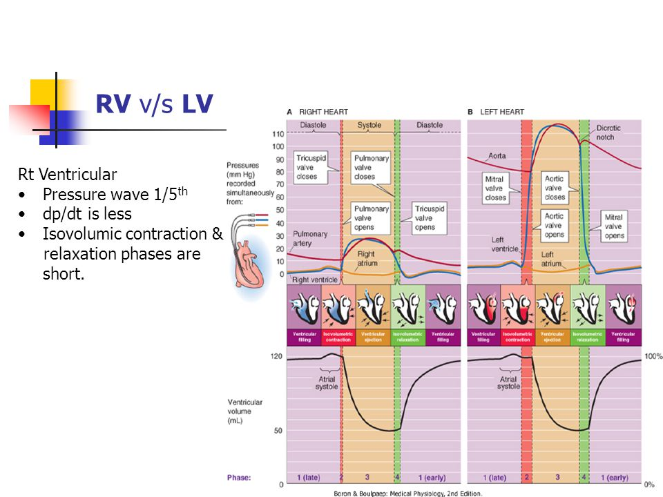 RV v/s LV Rt Ventricular Pressure wave 1/5th dp/dt is less