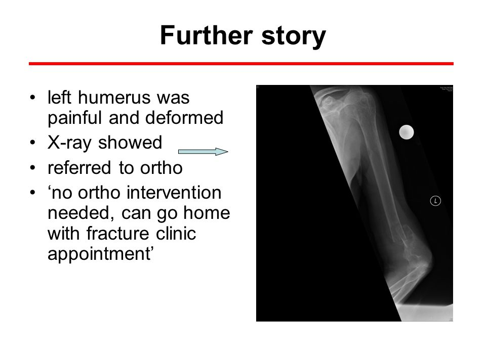 Further story left humerus was painful and deformed X-ray showed