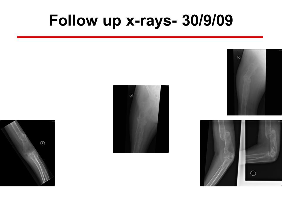 Follow up x-rays- 30/9/09