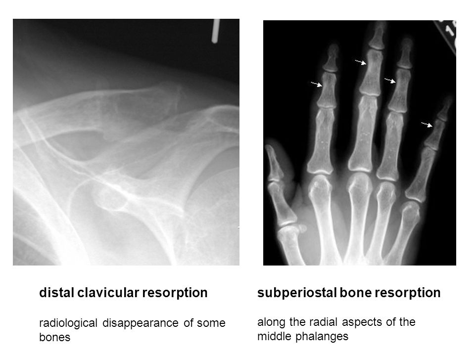 distal clavicular resorption subperiostal bone resorption