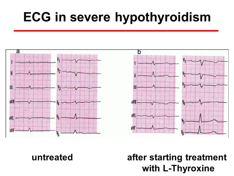 ECG in severe hypothyroidism