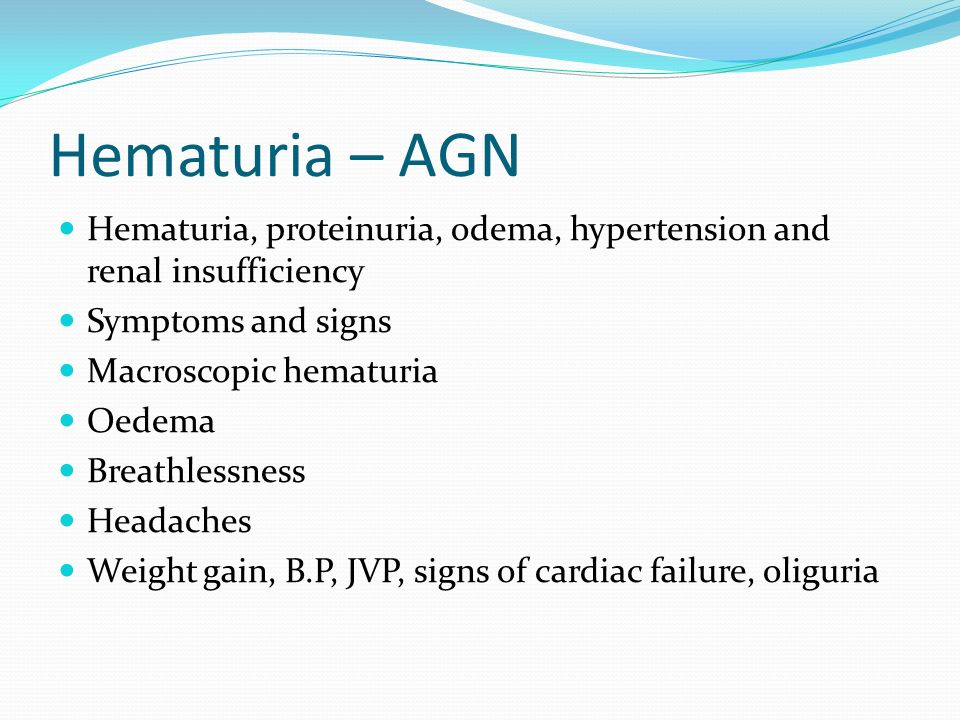 Hematuria – AGN Hematuria, proteinuria, odema, hypertension and renal insufficiency. Symptoms and signs.