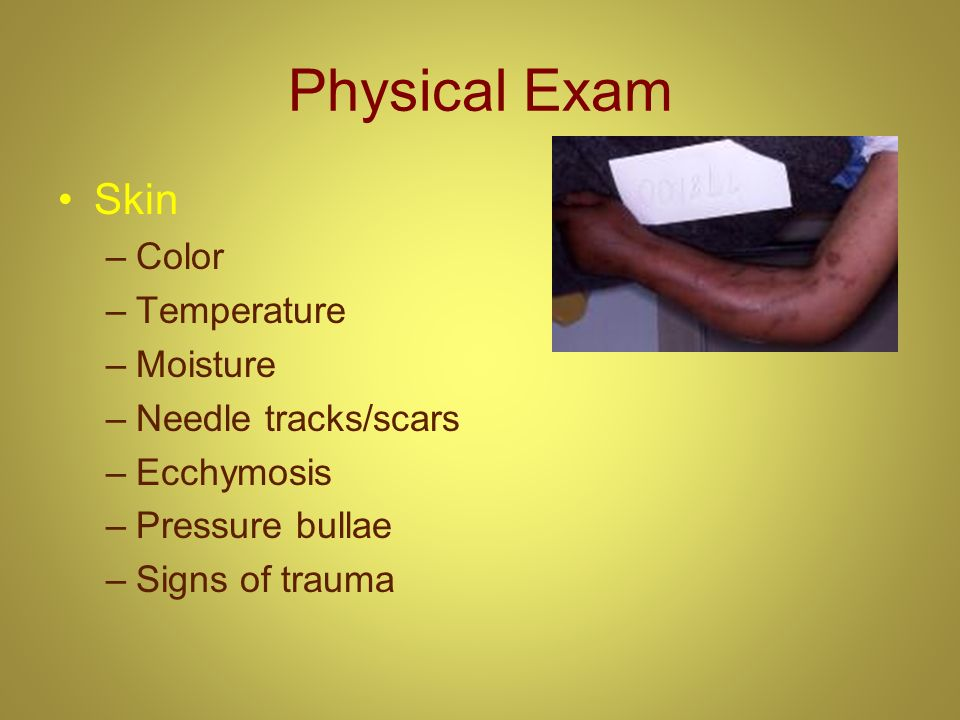 Physical Exam Skin Color Temperature Moisture Needle tracks/scars