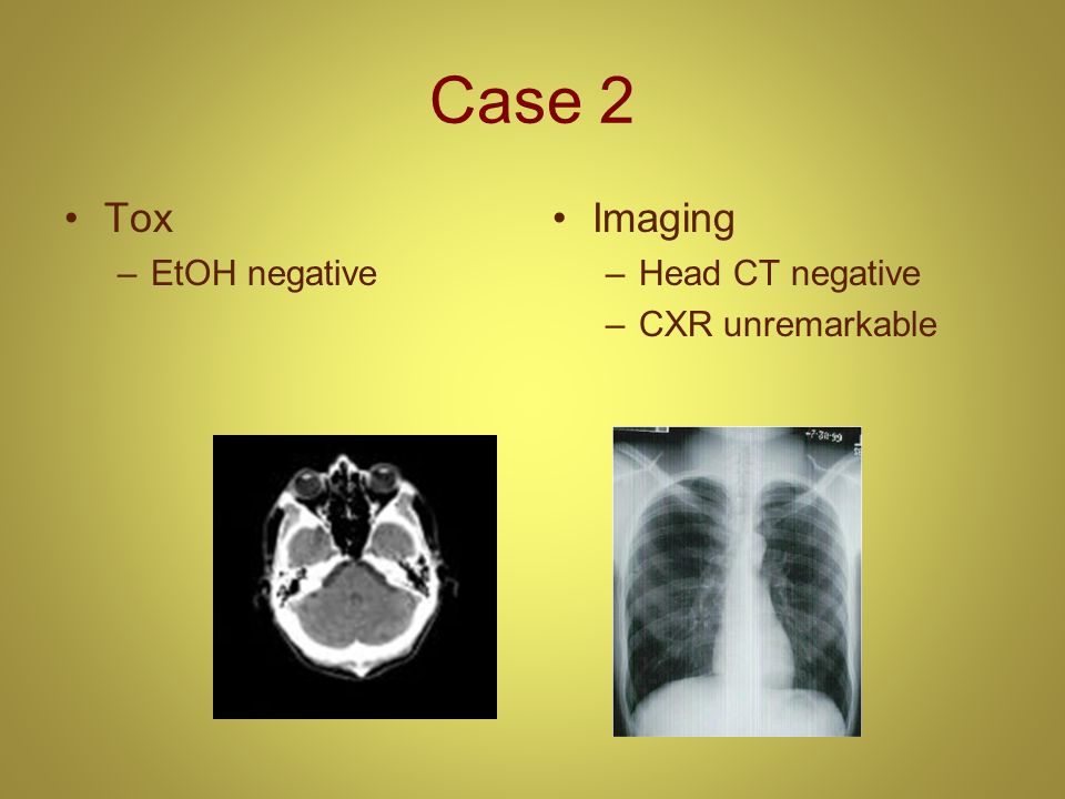 Case 2 Tox EtOH negative Imaging Head CT negative CXR unremarkable