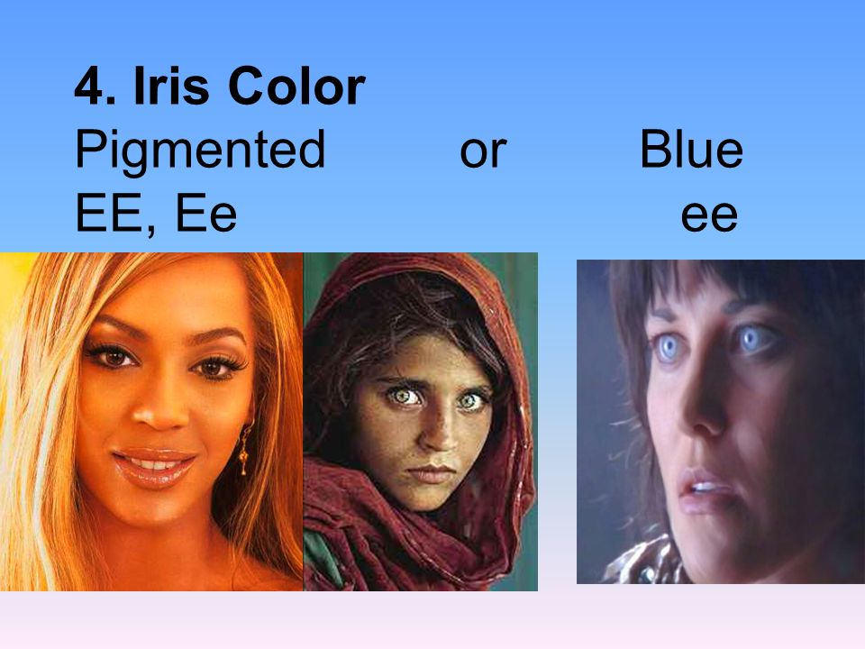 4. Iris Color Pigmented or Blue EE, Ee ee