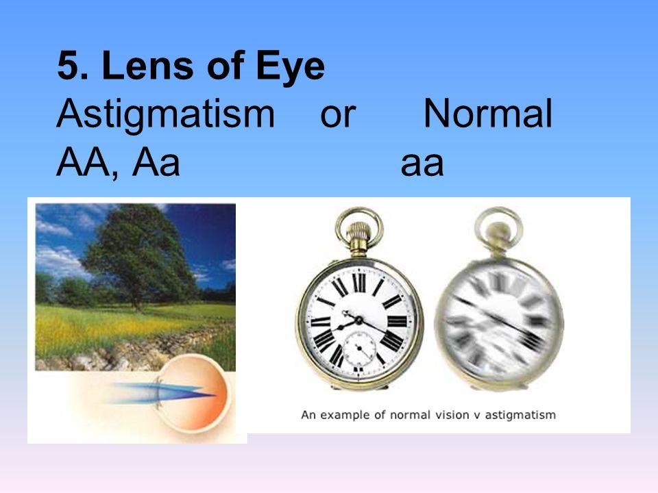 5. Lens of Eye Astigmatism or Normal AA, Aa aa