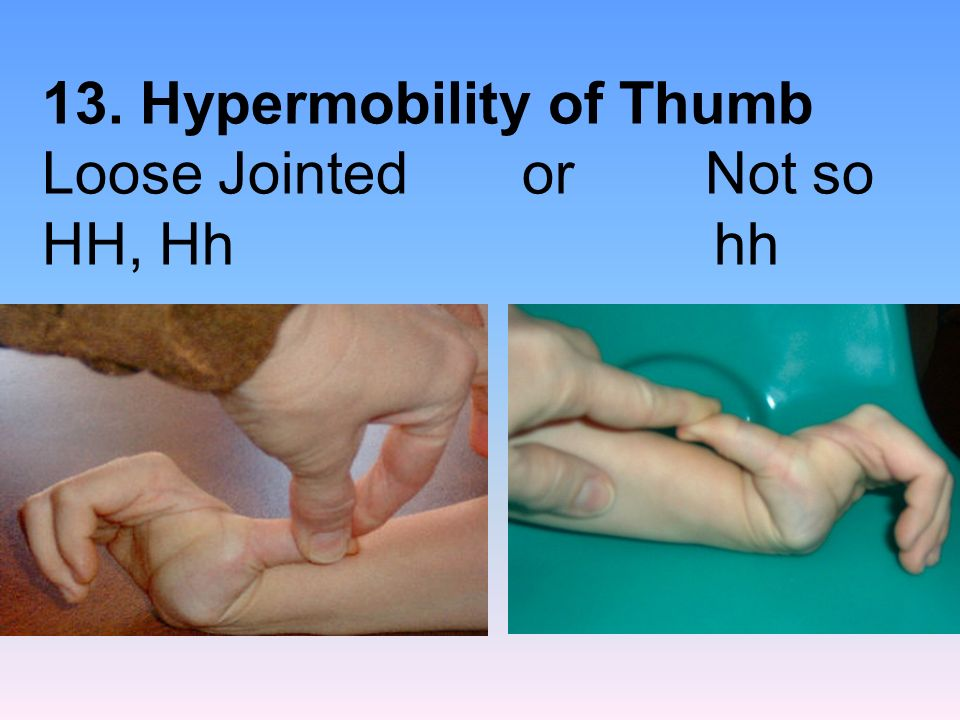 13. Hypermobility of Thumb Loose Jointed or Not so HH, Hh hh