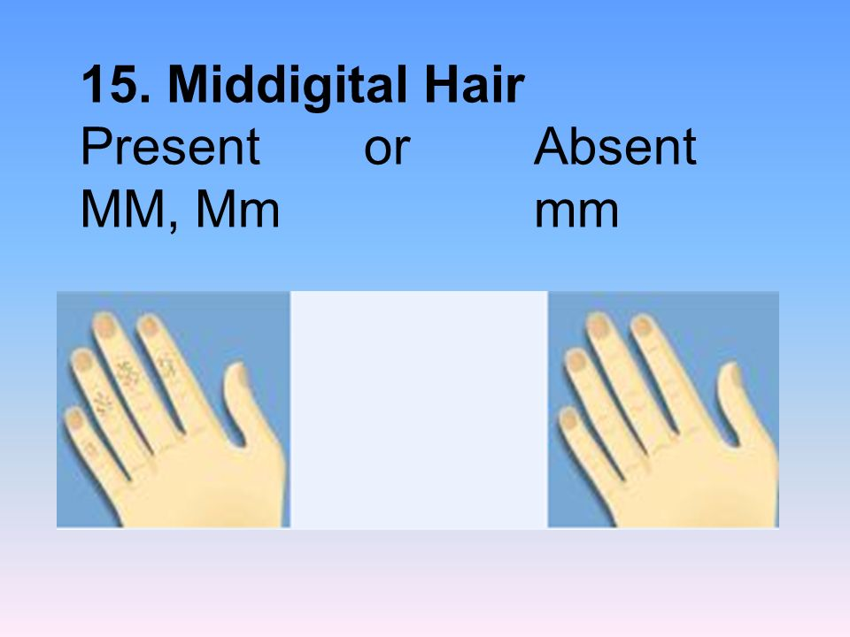 15. Middigital Hair Present or Absent MM, Mm mm