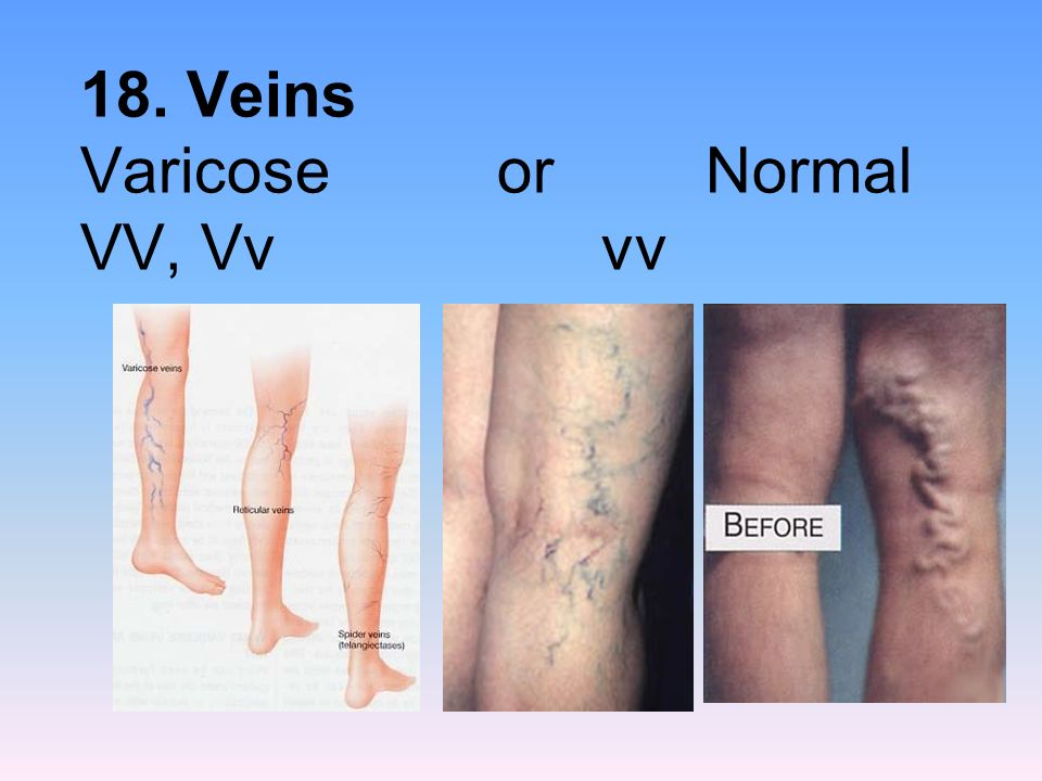 18. Veins Varicose or Normal VV, Vv vv