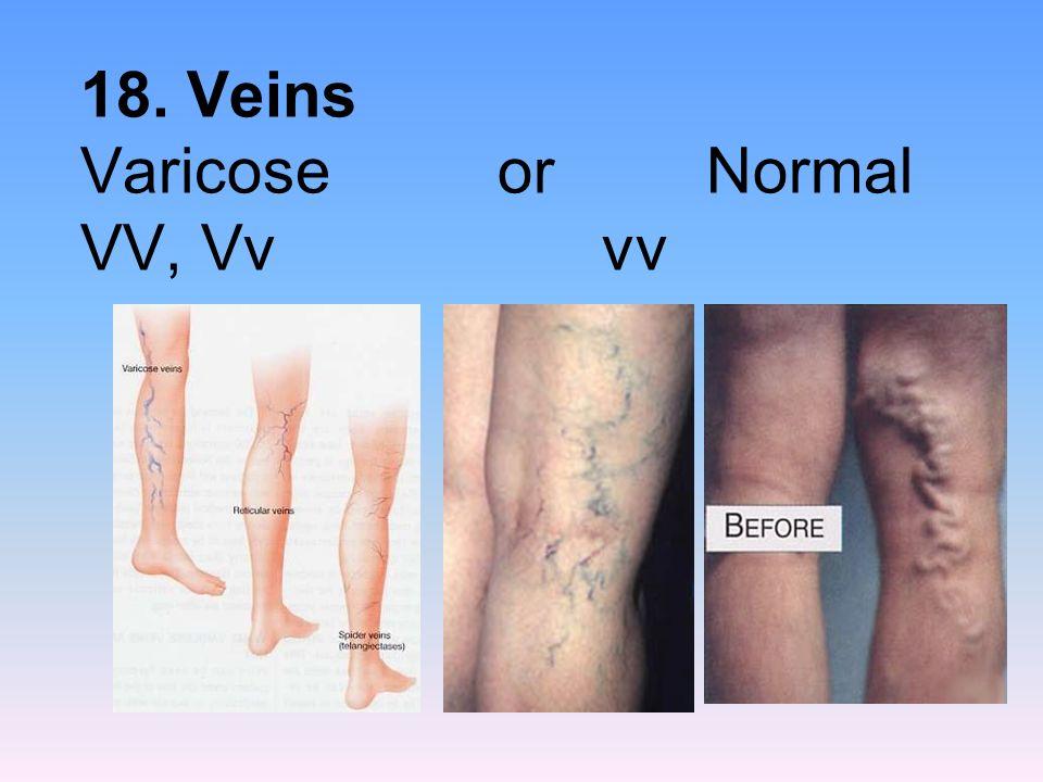 18. Veins Varicose or Normal VV, Vv vv