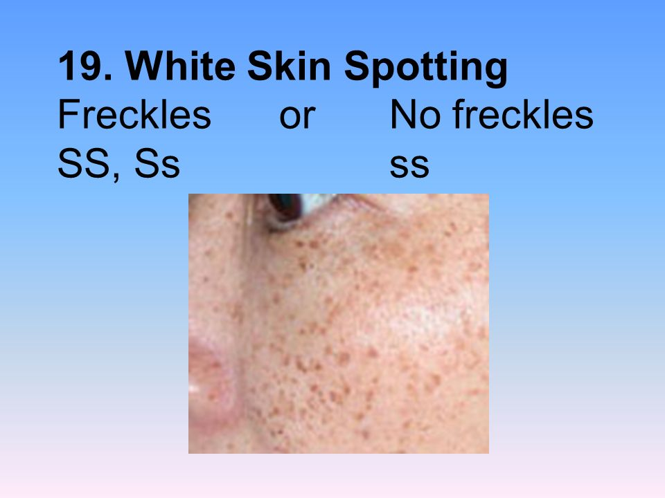 19. White Skin Spotting Freckles or No freckles SS, Ss ss