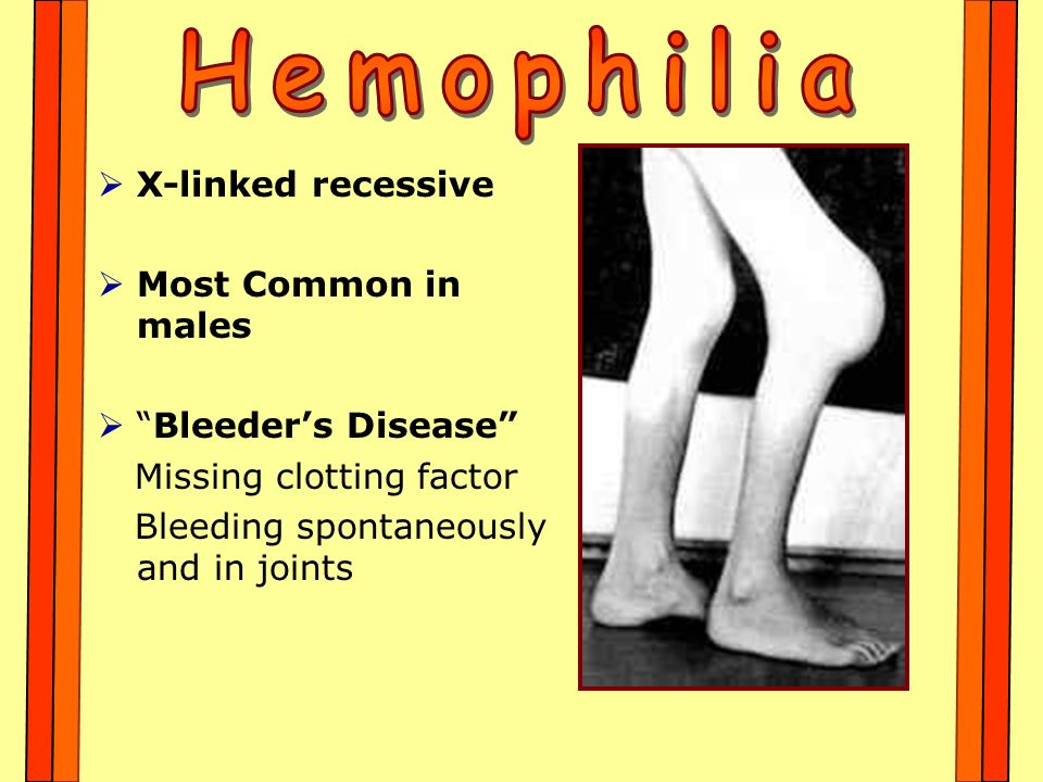 Hemophilia X-linked recessive Most Common in males Bleeder's Disease