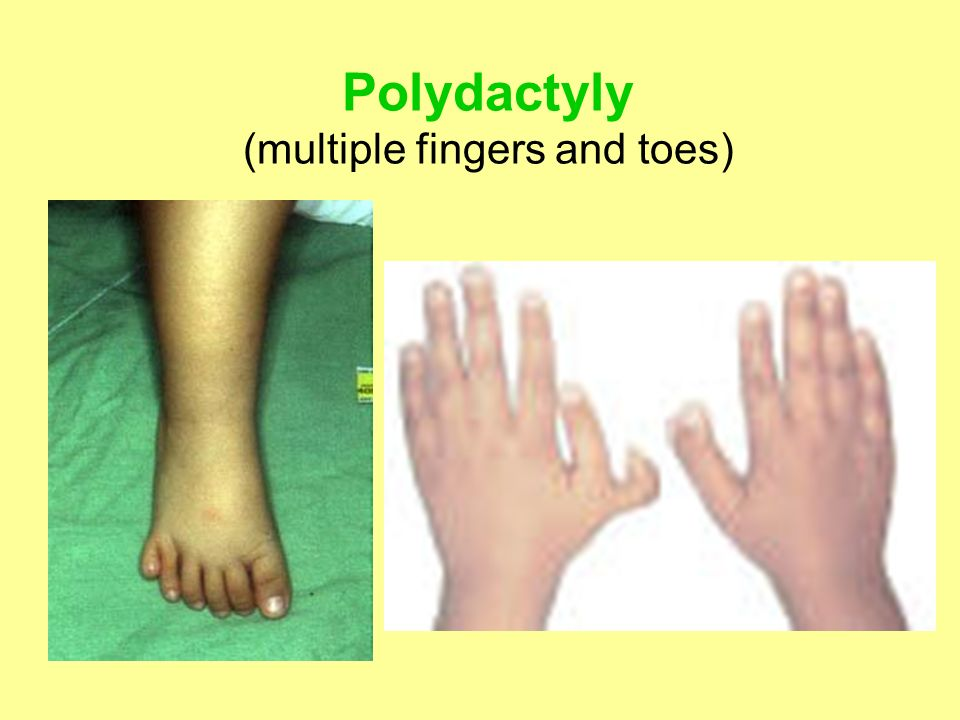 Polydactyly (multiple fingers and toes)