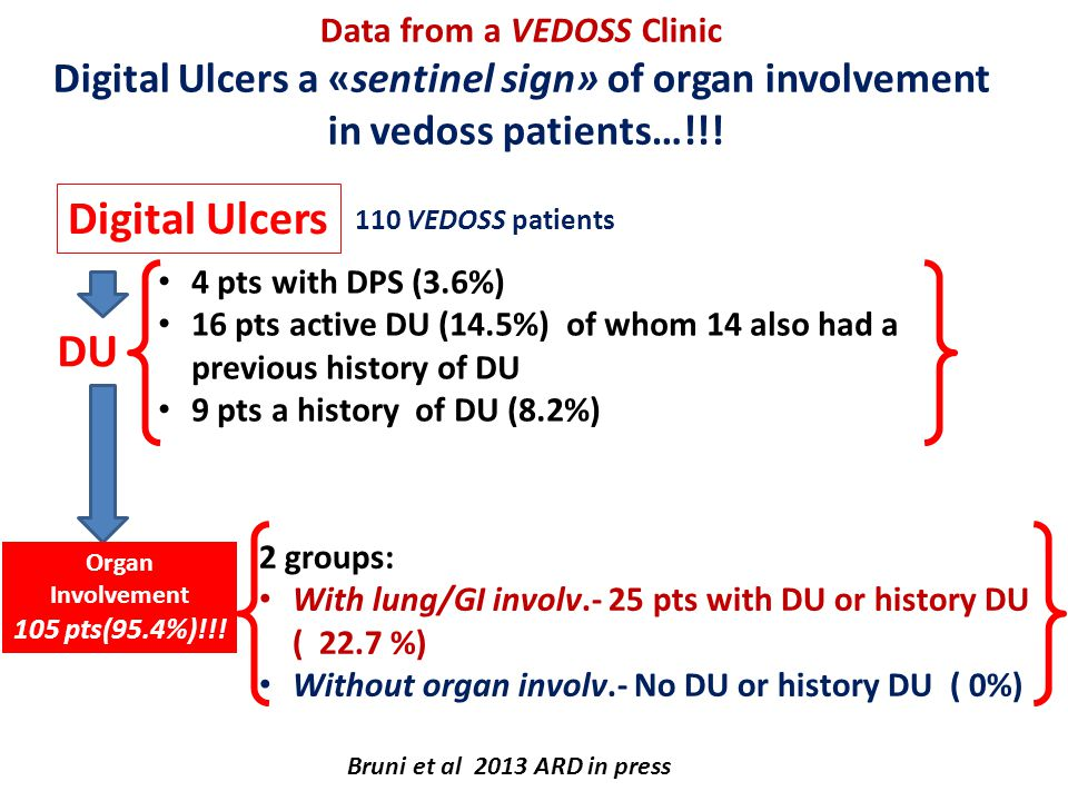 Data from a VEDOSS Clinic Digital Ulcers a «sentinel sign» of organ involvement in vedoss patients…!!!