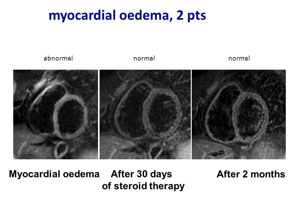 myocardial oedema, 2 pts Myocardial oedema After 30 days
