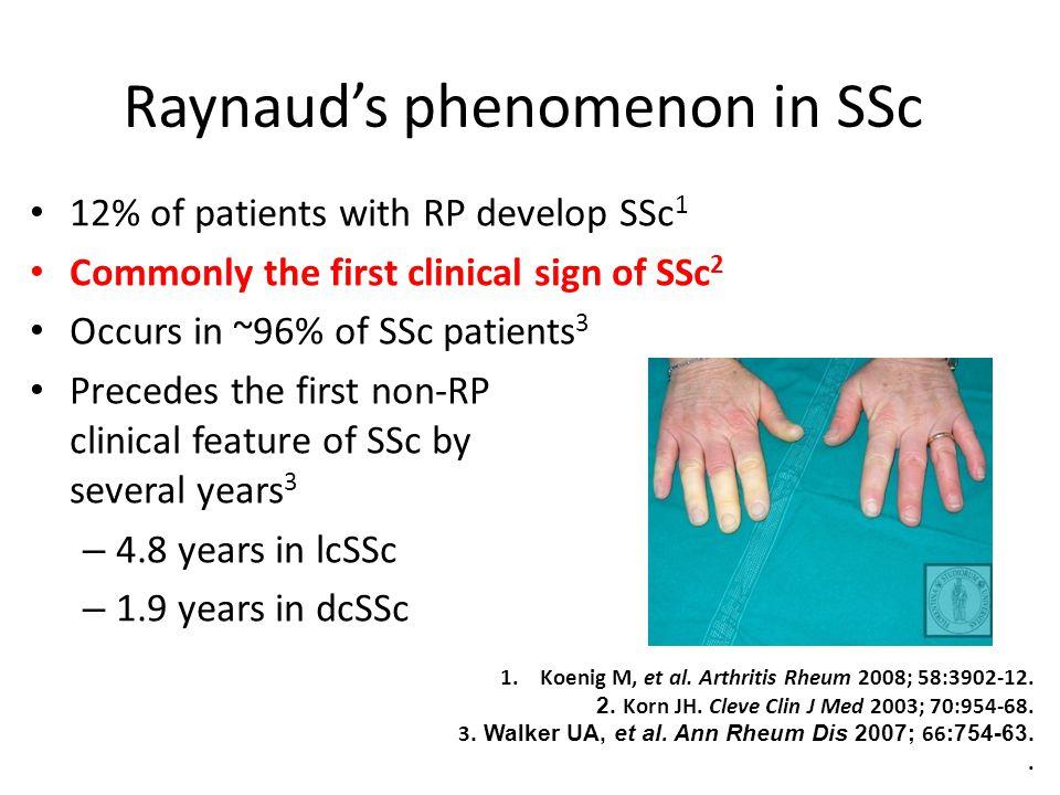 Raynaud's phenomenon in SSc