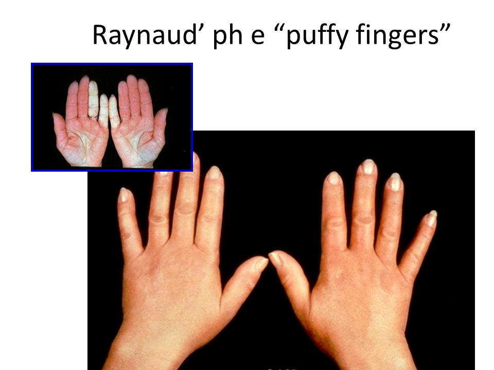 Raynaud' ph e puffy fingers