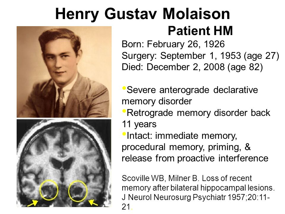 Henry Gustav Molaison Patient HM Born: February 26, 1926