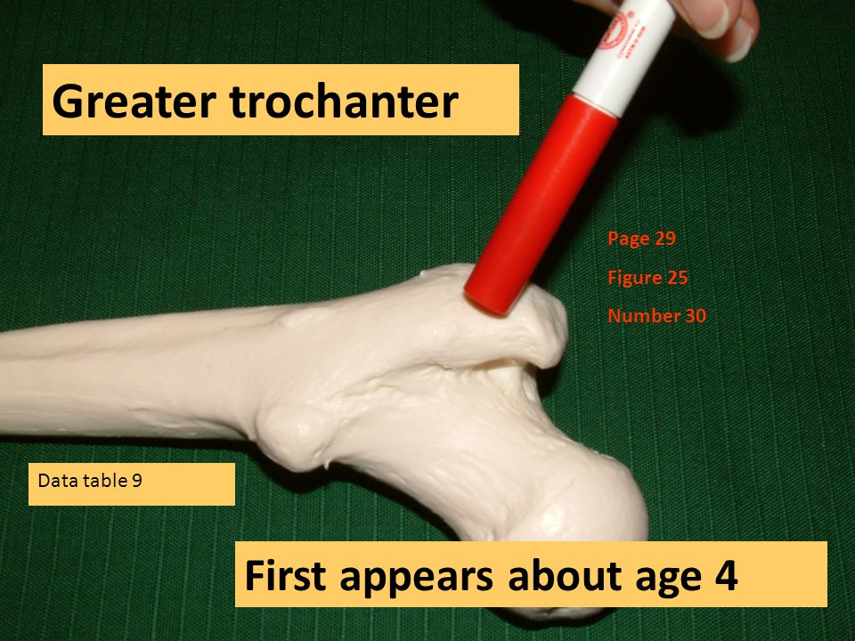 Greater trochanter First appears about age 4 Page 29 Figure 25