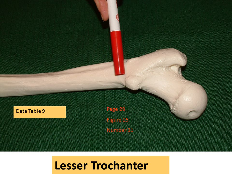 Page 29 Figure 25 Number 31 Data Table 9 Lesser Trochanter