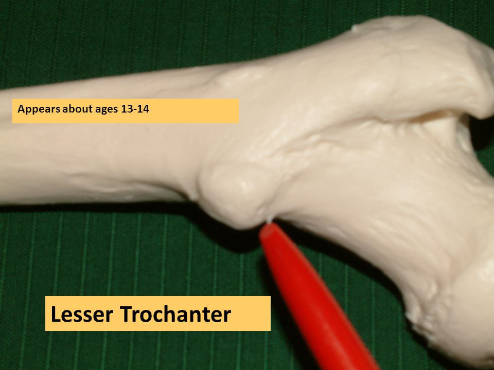 Appears about ages 13-14 Lesser Trochanter