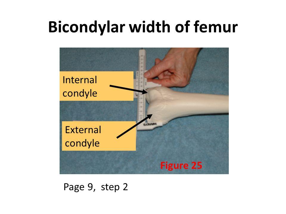 Bicondylar width of femur