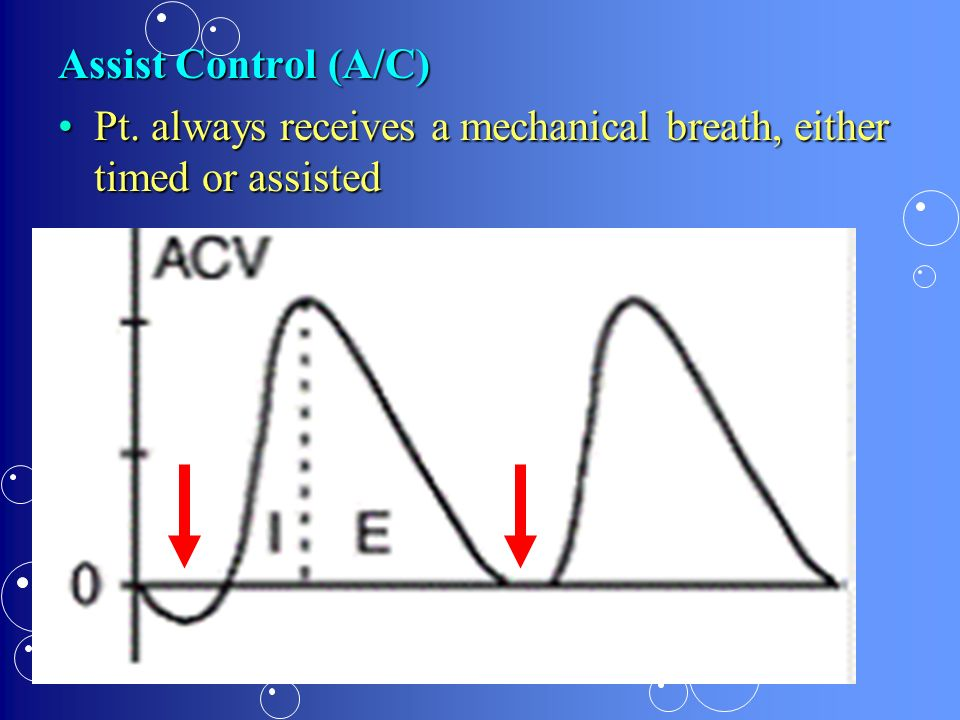 Assist Control (A/C) Pt. always receives a mechanical breath, either timed or assisted