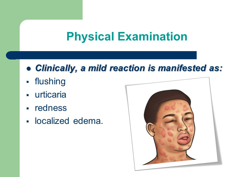 Physical Examination Clinically, a mild reaction is manifested as: