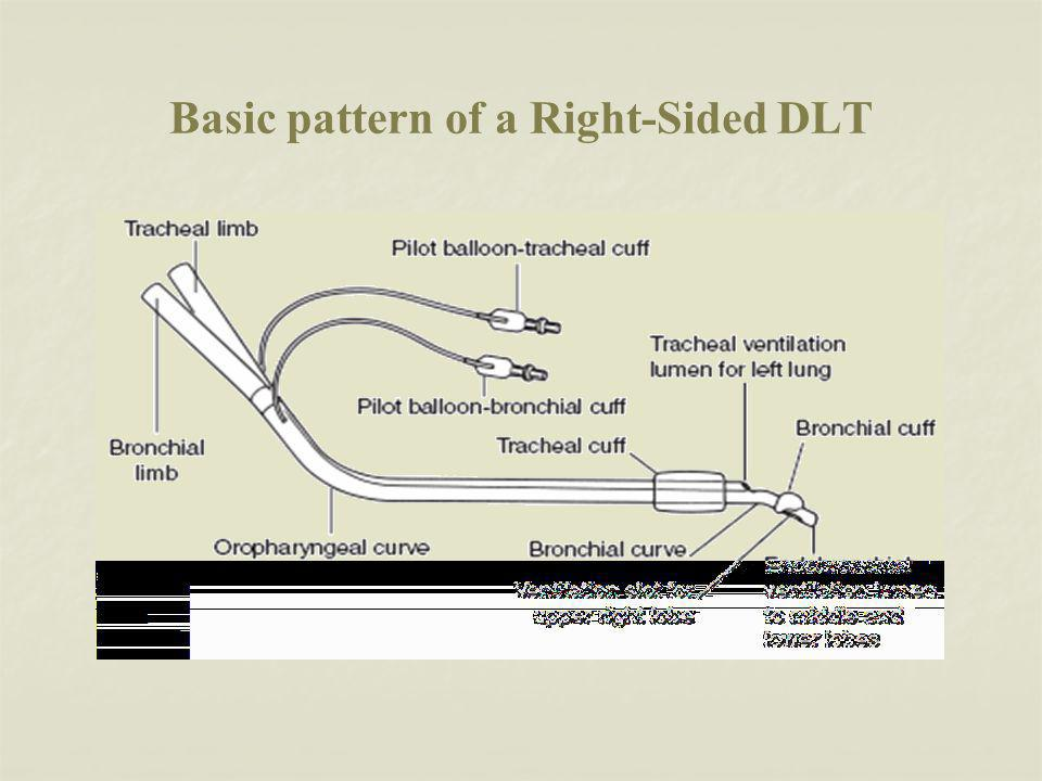 Basic pattern of a Right-Sided DLT