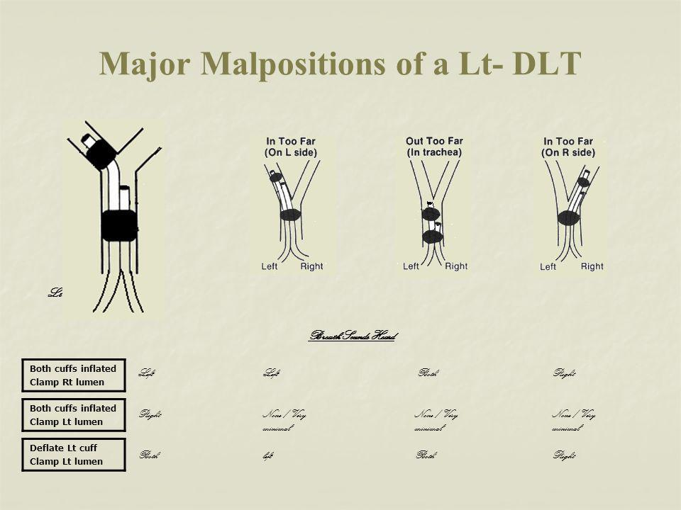 Major Malpositions of a Lt- DLT