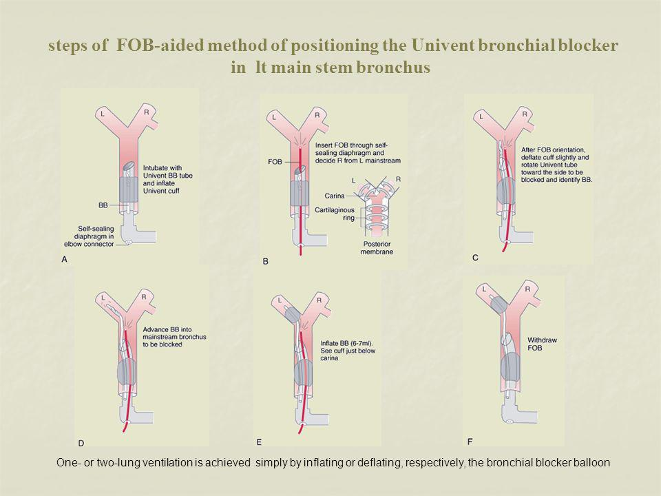 steps of FOB-aided method of positioning the Univent bronchial blocker in lt main stem bronchus