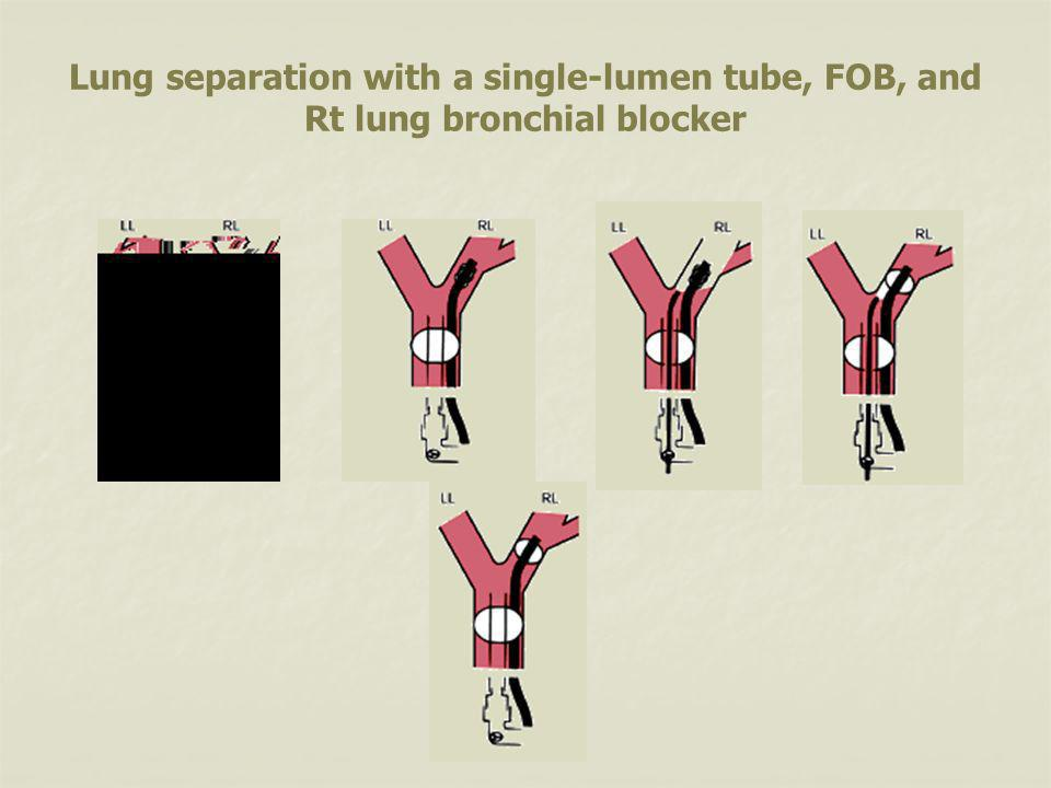Lung separation with a single-lumen tube, FOB, and Rt lung bronchial blocker