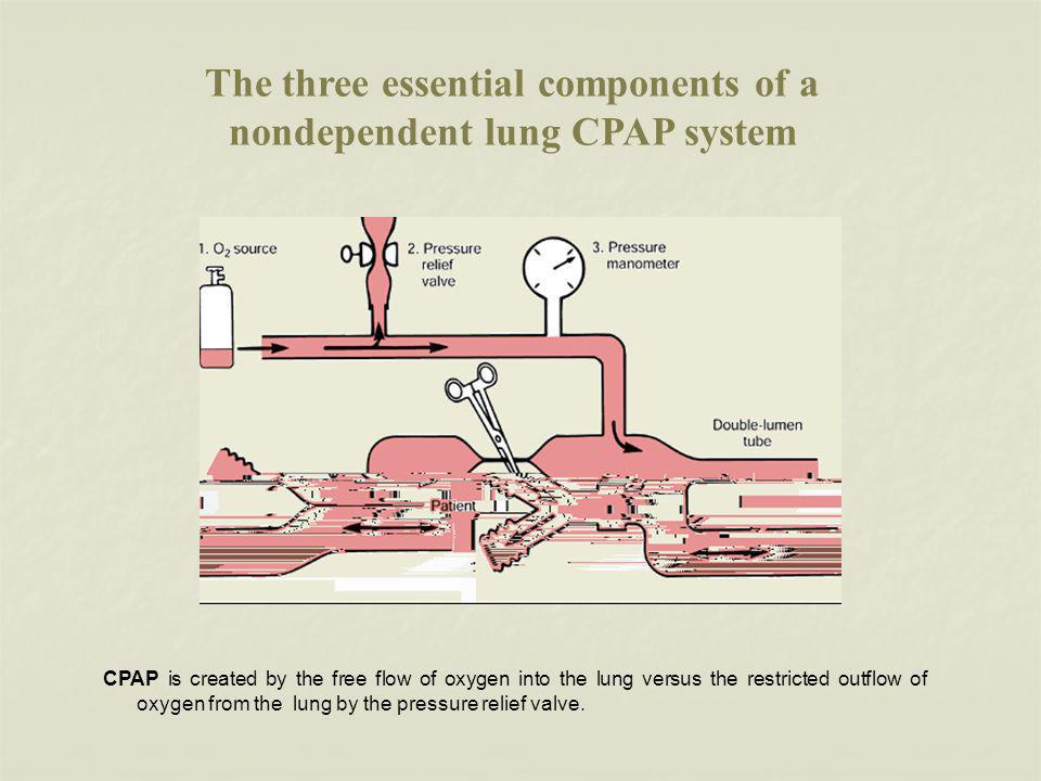 The three essential components of a nondependent lung CPAP system