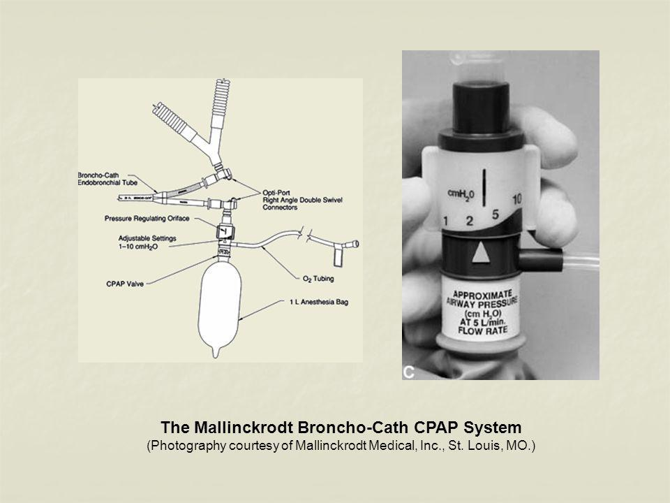 The Mallinckrodt Broncho-Cath CPAP System