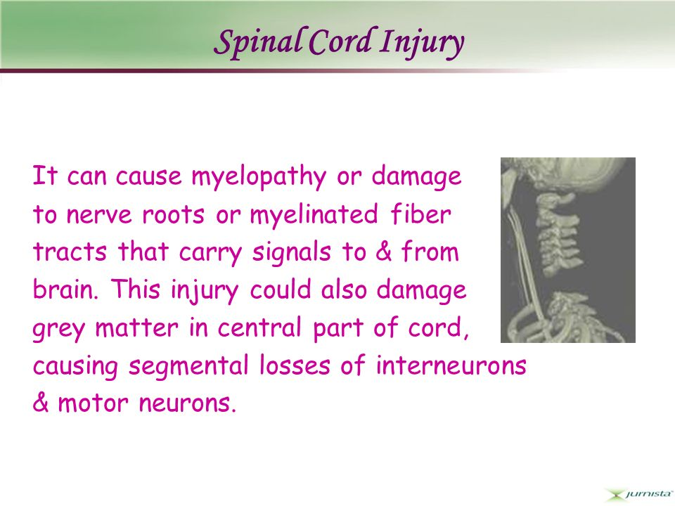 Spinal Cord Injury It can cause myelopathy or damage