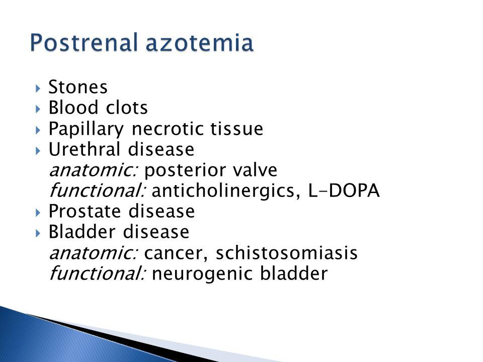 Postrenal azotemia Stones Blood clots Papillary necrotic tissue
