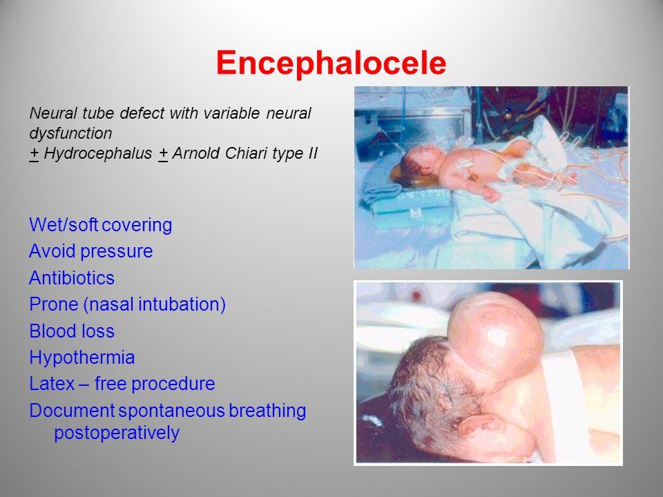 Encephalocele Wet/soft covering Avoid pressure Antibiotics