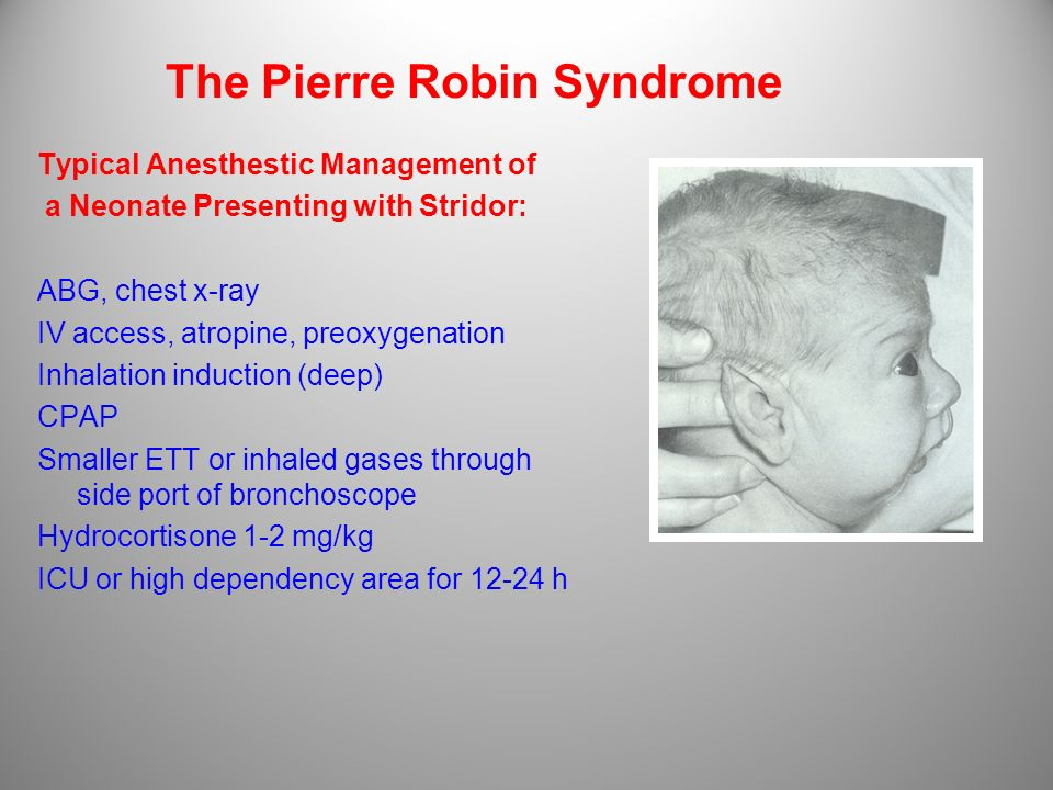 The Pierre Robin Syndrome