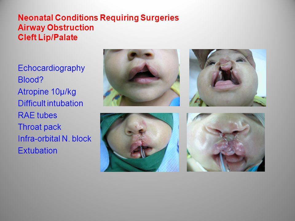 Neonatal Conditions Requiring Surgeries Airway Obstruction Cleft Lip/Palate