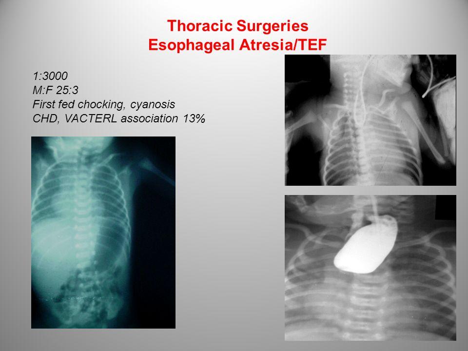 Thoracic Surgeries Esophageal Atresia/TEF