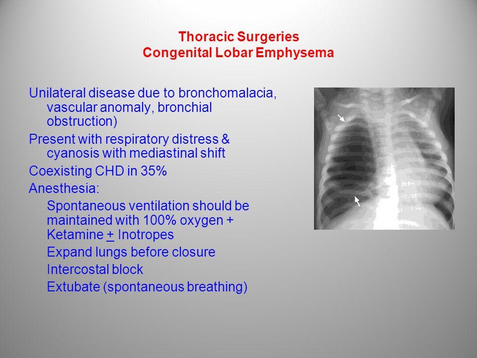 Thoracic Surgeries Congenital Lobar Emphysema