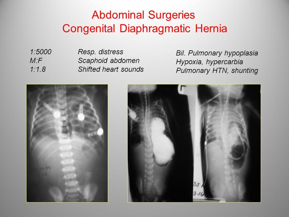 Abdominal Surgeries Congenital Diaphragmatic Hernia