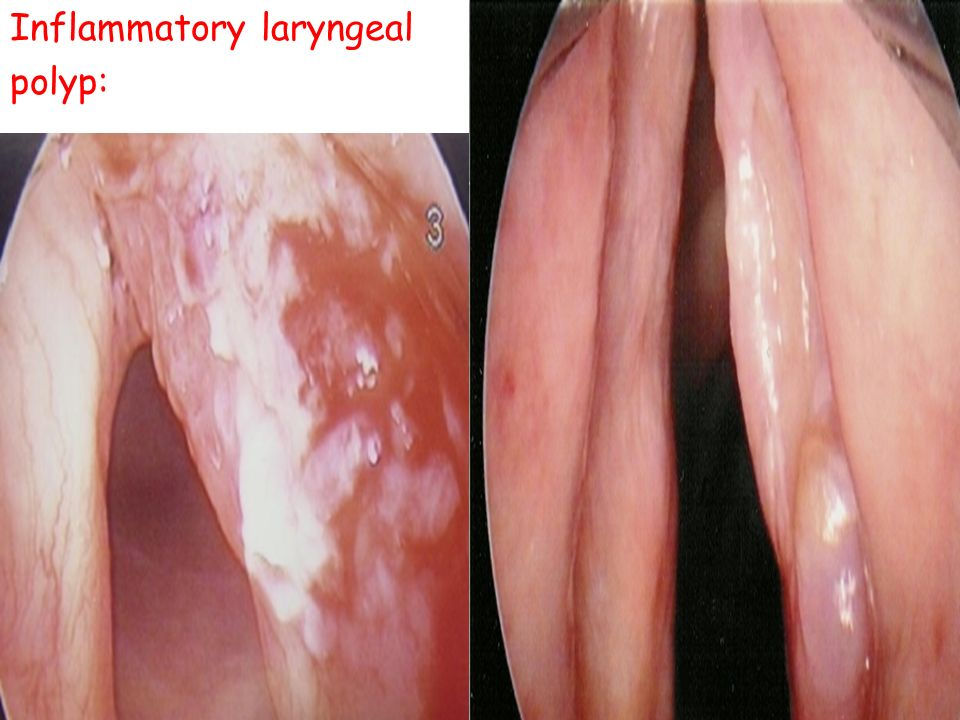 Inflammatory laryngeal
