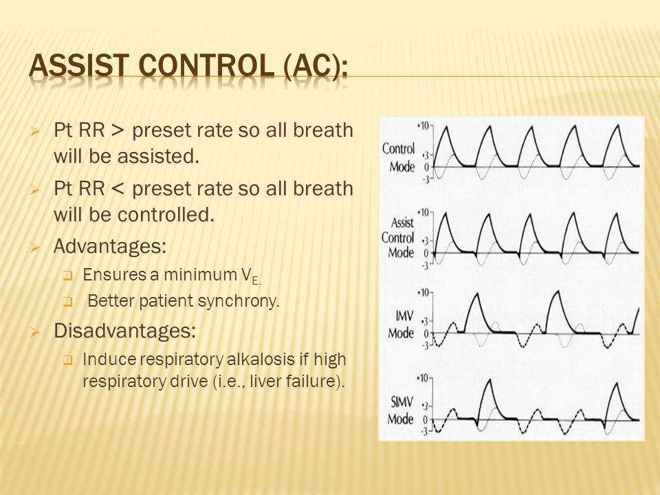 Assist control (AC): Pt RR < preset rate so all breath will be assisted. Pt RR > preset rate so all breath will be controlled.