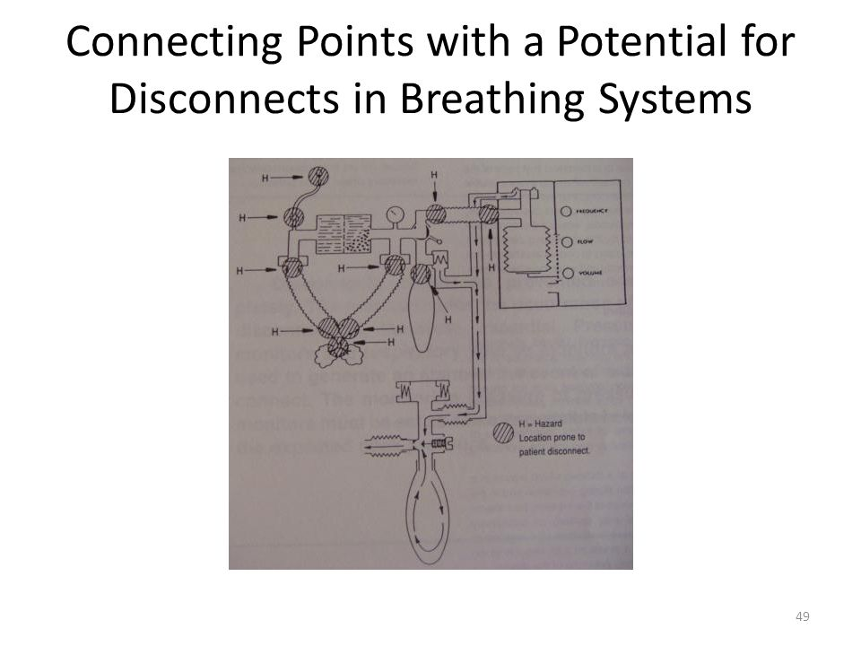 Connecting Points with a Potential for Disconnects in Breathing Systems