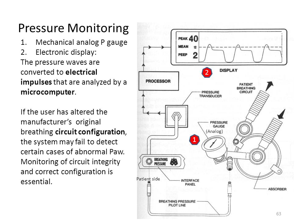 Pressure Monitoring Mechanical analog P gauge Electronic display: