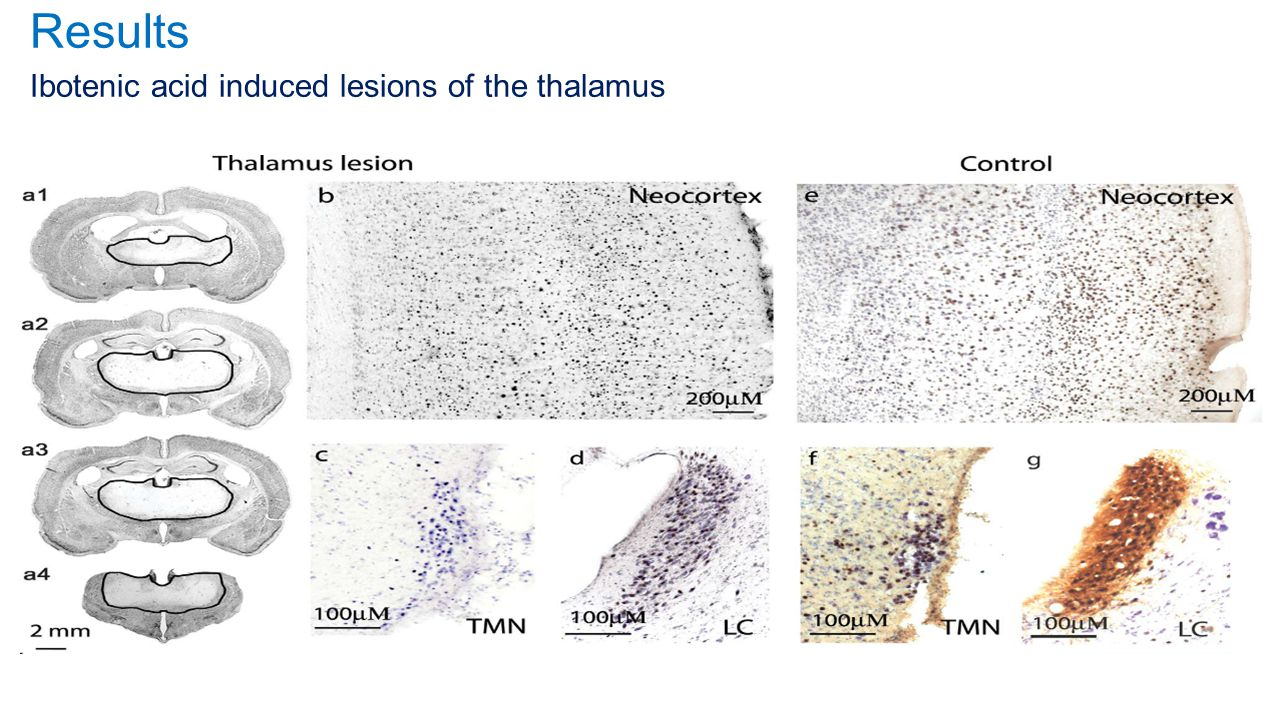 Results Ibotenic acid induced lesions of the thalamus